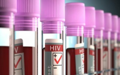 Digits matter: When HIV AIDS global numbers are going up