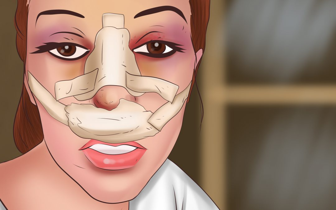 The Bakit list of #why plastic surgery is frowned upon in PH