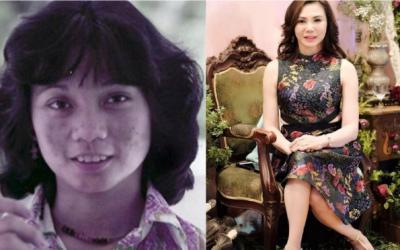 Dra. Vicki Belo before her plastic surgery empire