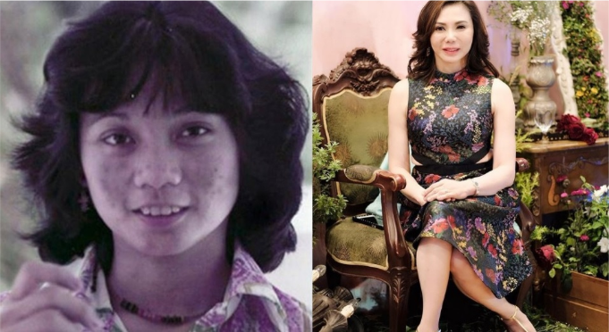 Dra  Vicki Belo before her plastic surgery empire - The