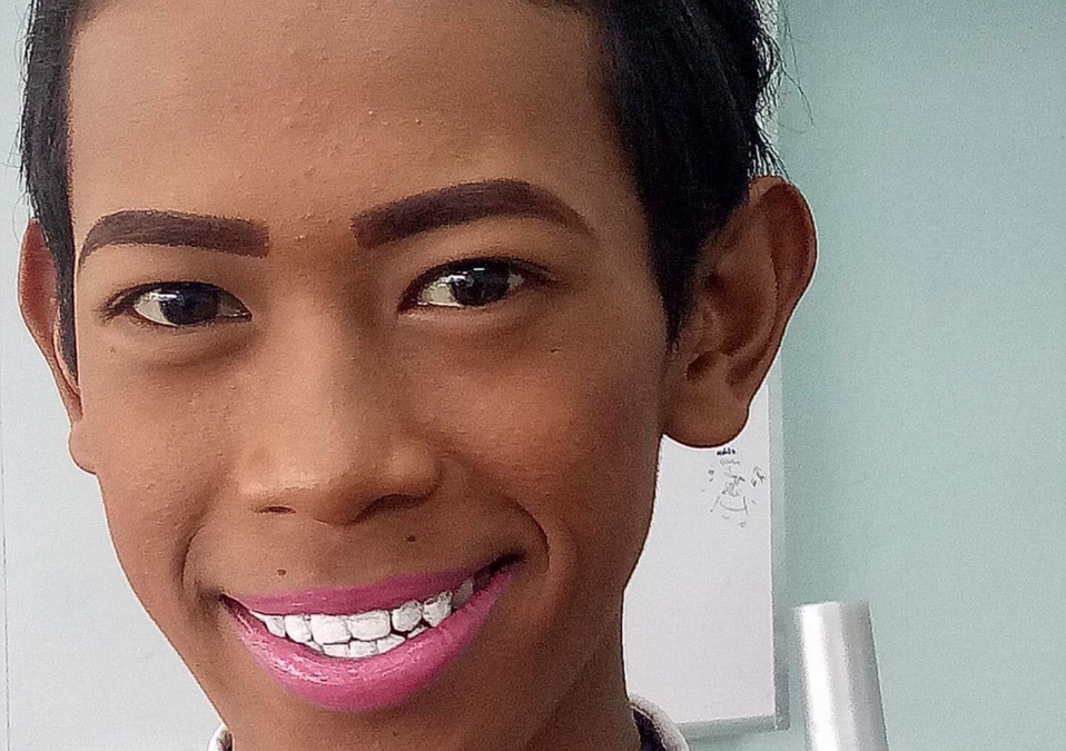 VIRAL: Filipino student uses nail polish to whiten his teeth