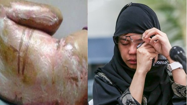 Scalded OFW in Saudi arrives home
