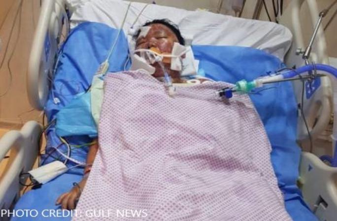 OFW in Dubai endures debilitating skin disease