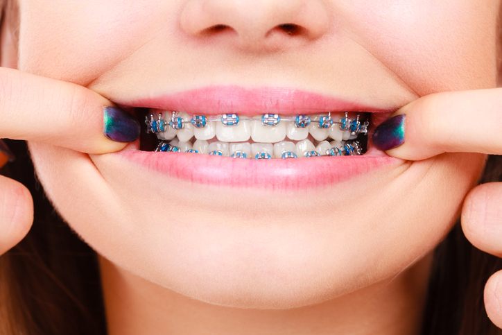 Dentists warn OFWs about do-it-yourself braces