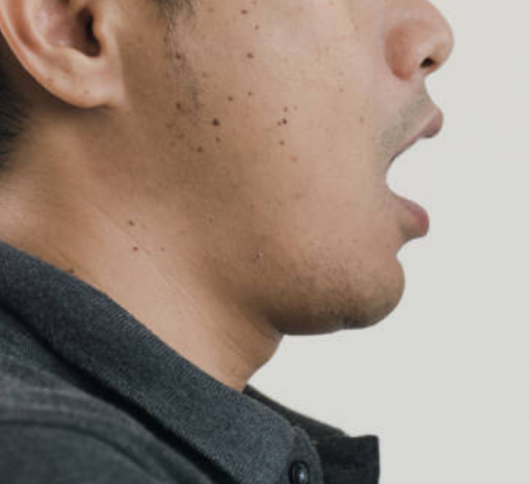 Stay away from me, ugly warts - The Filipino Times