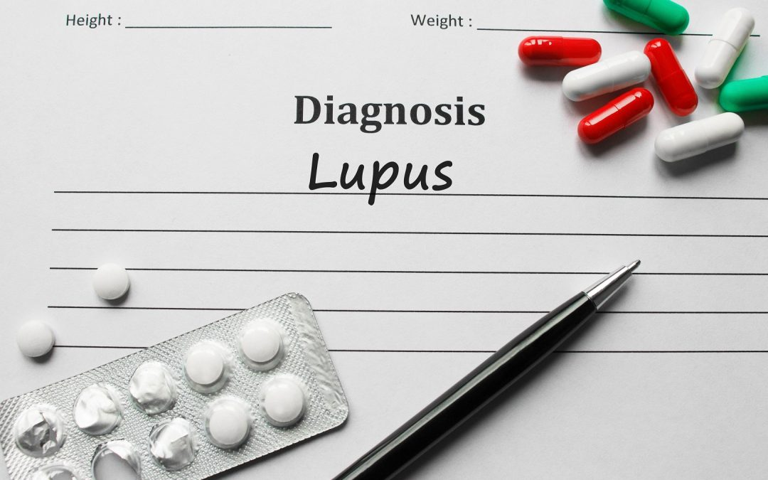 Lupus: What you need to know