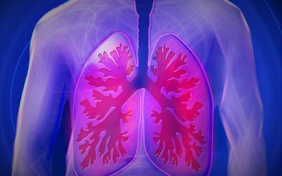 Sign and symptoms of pulmonary edema