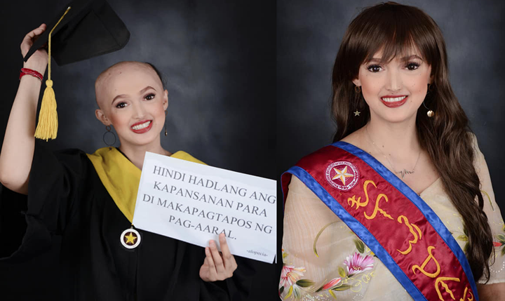 Netizens praise Filipino student with alopecia in viral grad pic