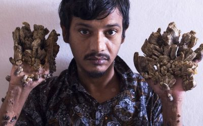 'Tree Man' wants to cut his hands to relieve pain