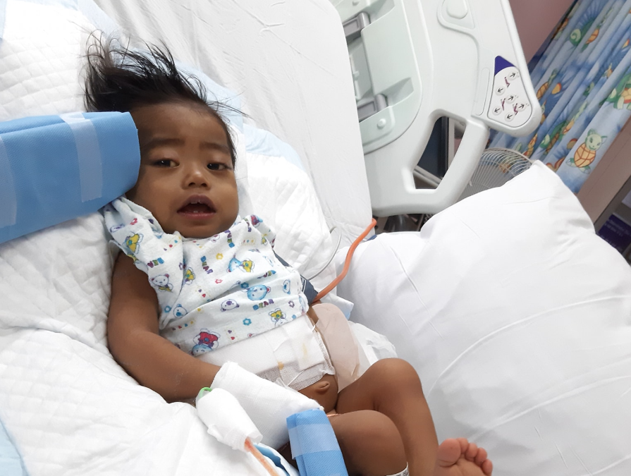 Viral 'Baby Aki' dies after liver operation