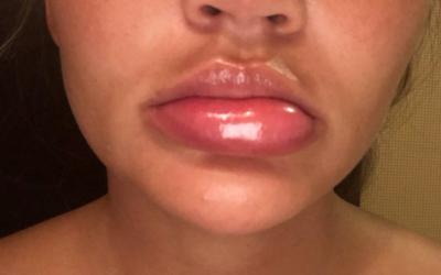 LOOK: Model Chrissy Teigen suffers from swollen lips