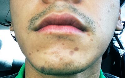 Enchong Dee sustains slight facial injury from burning oil canister