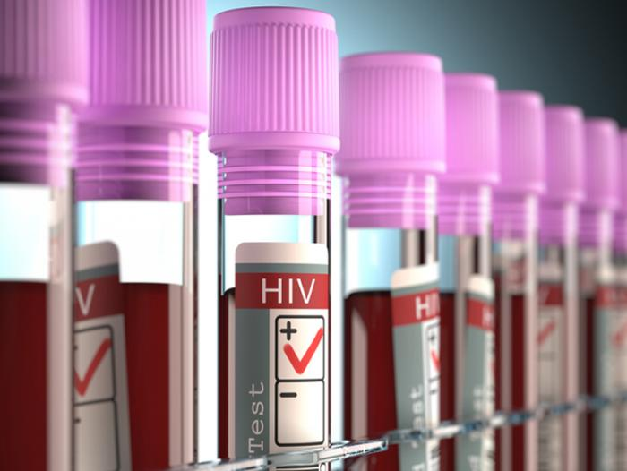 82 OFWs contract HIV in July 2019