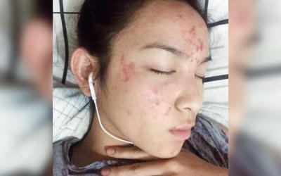 "Kyline Alcantara overcomes her ""acne breakouts"""