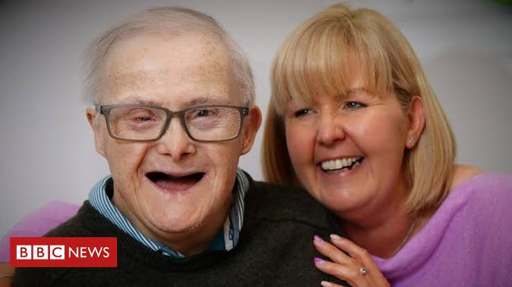 British man with Down Syndrome, one of oldest in the UK at 77