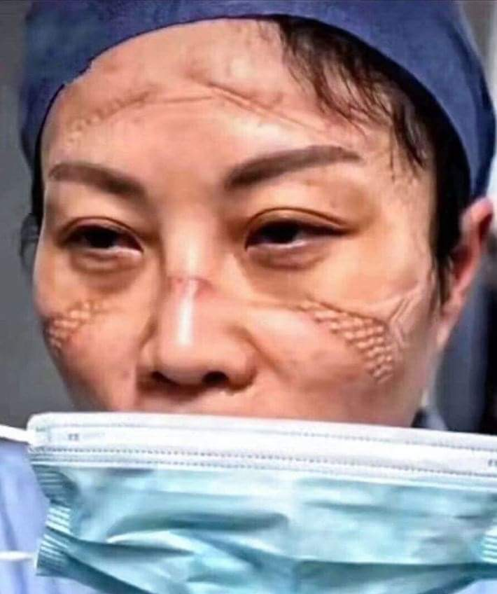 Coronavirus First Case In China: LOOK: Nurses Left With Deep Marks From Masks