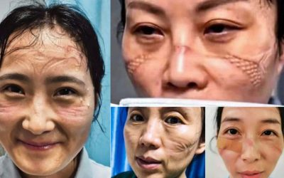 LOOK: Nurses left with deep marks from masks