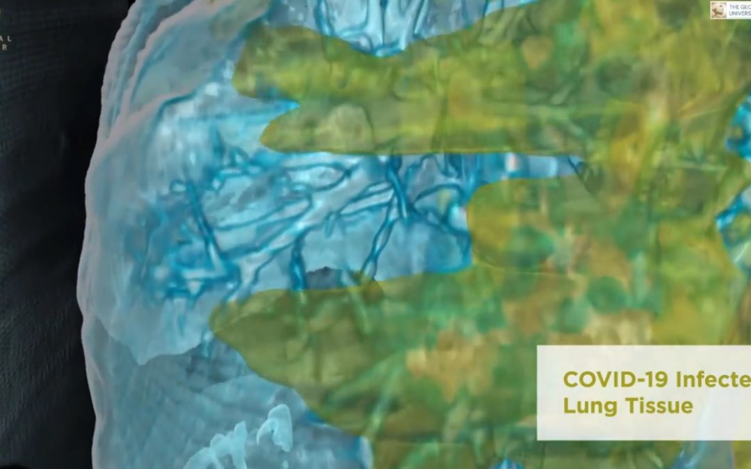 WATCH: How COVID-19 damages the lungs of positive patients