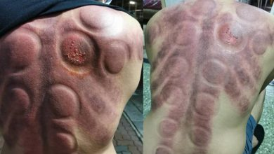 Photo of OFW gets angry red, blistered skin after cupping procedure
