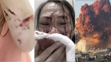 Photo of WATCH: Pinay OFW braves wounds from Beirut explosion