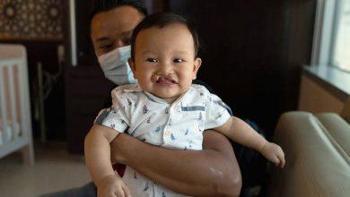 Photo of UAE provides free, life-changing surgeries for children with cleft lip, cleft palate