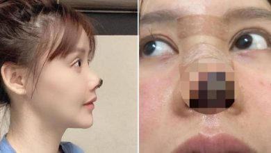 Photo of 'Botched' surgery leaves Chinese actress' nose tip rotten
